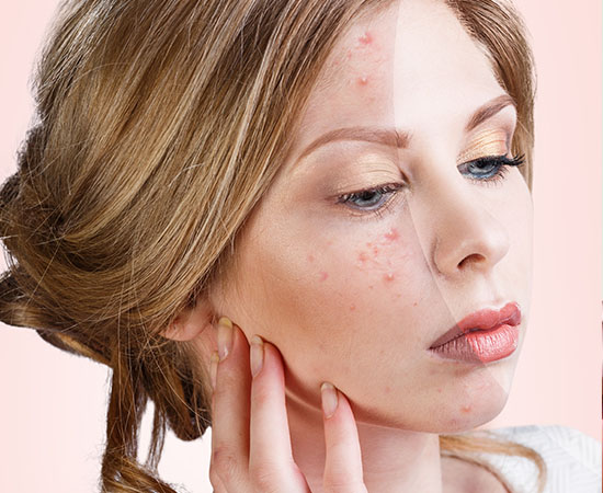 Acne and Post Acne Marks Treatments
