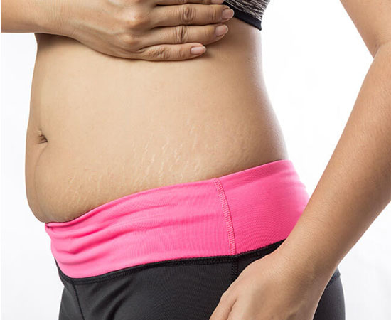 Liposuction (Lipoplasty)