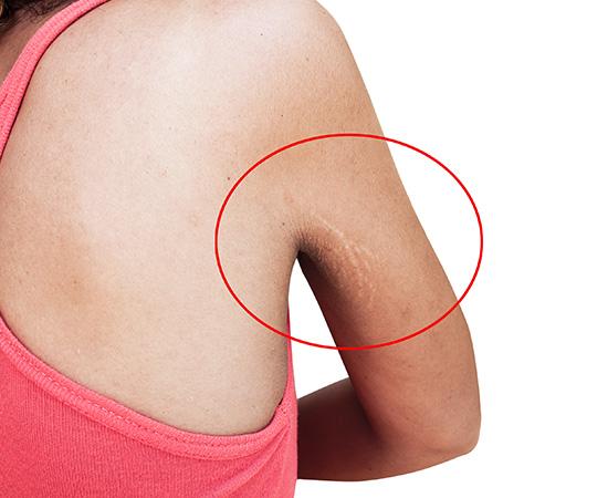 Stretchmarks Treatment